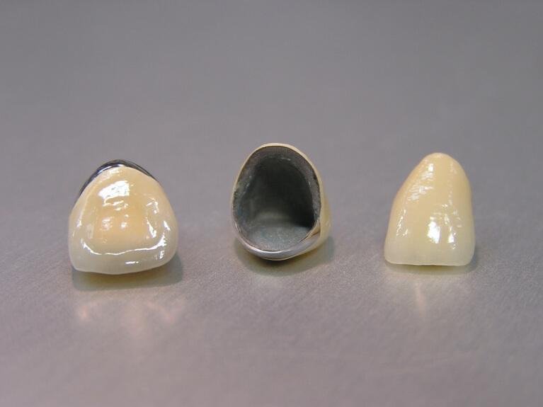 審美歯科(セラミック治療)なら宝塚の安福歯科医院