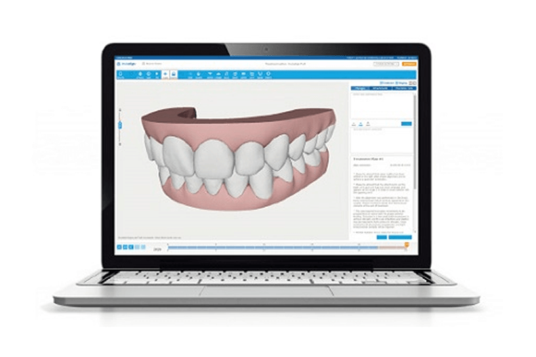 iTeroを使用したインビザライン矯正なら安福歯科医院