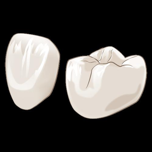 宝塚でジルコニアを使ったセラミック治療なら安福歯科医院へ