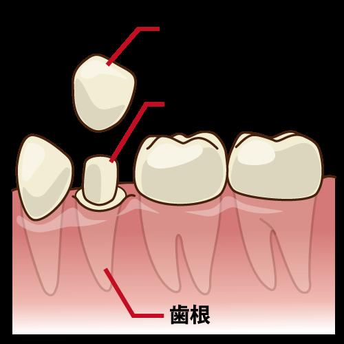 宝塚でファイバーコアを使用した審美歯科治療なら安福歯科医院