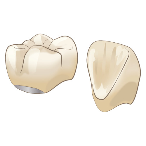 宝塚でハイブリッドセラミックを使った治療は安福歯科医院