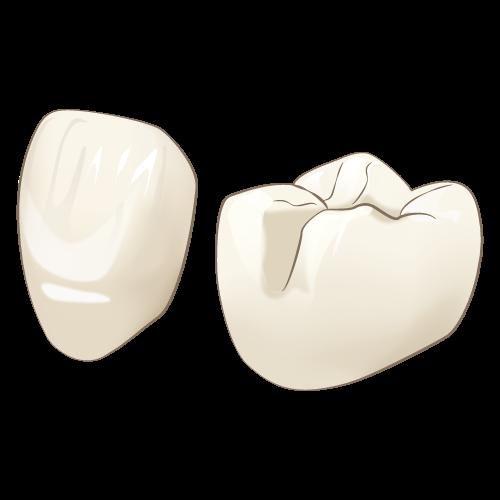 宝塚でオールセラミックを使用した審美歯科治療なら安福歯科医院