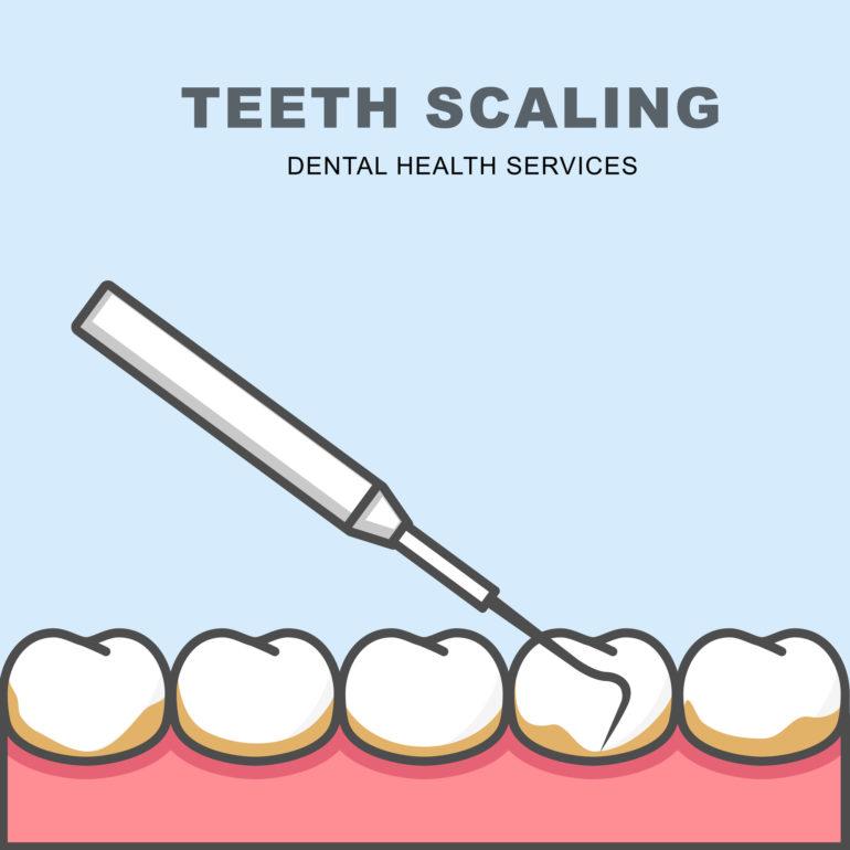 宝塚で歯石除去(歯石取り)なら安福歯科医院