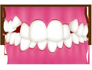 ガチャ歯・ガタガタの歯並びの原因