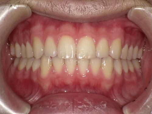 前歯の矯正症例after