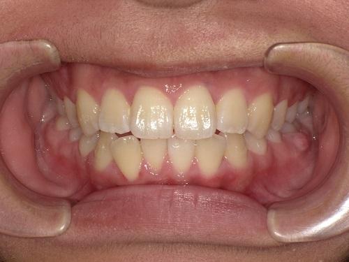 前歯の矯正症例before