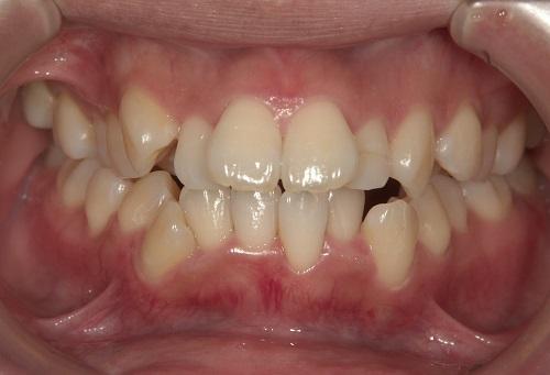 ガチャ歯・ガタガタの矯正症例